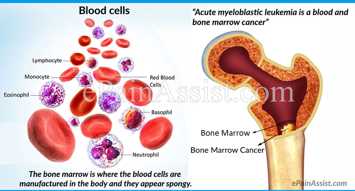 Acute Myeloblastic Leukemia or Acute Granulocytic Leukemia