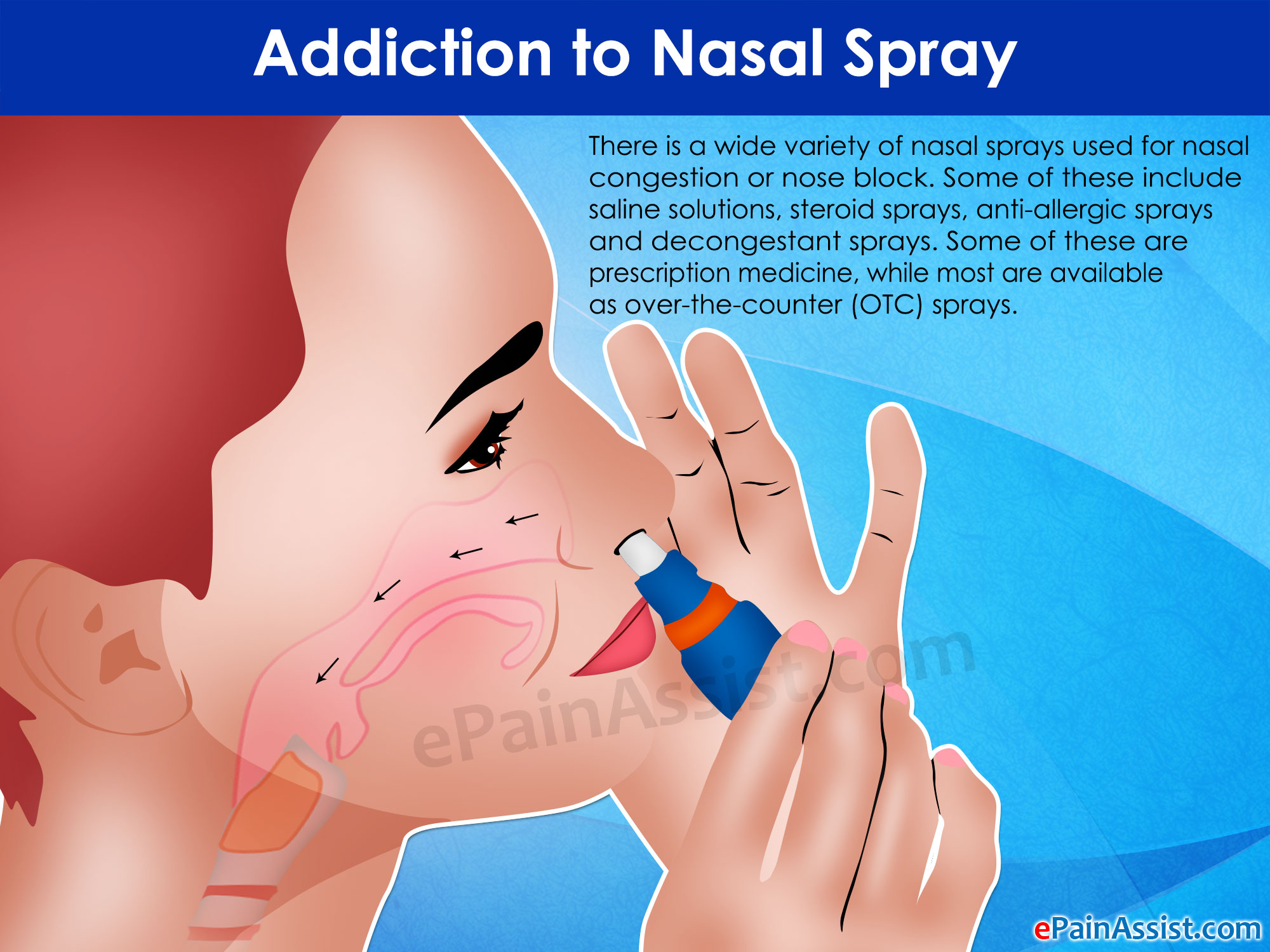 nasal steroid spray sinus infection