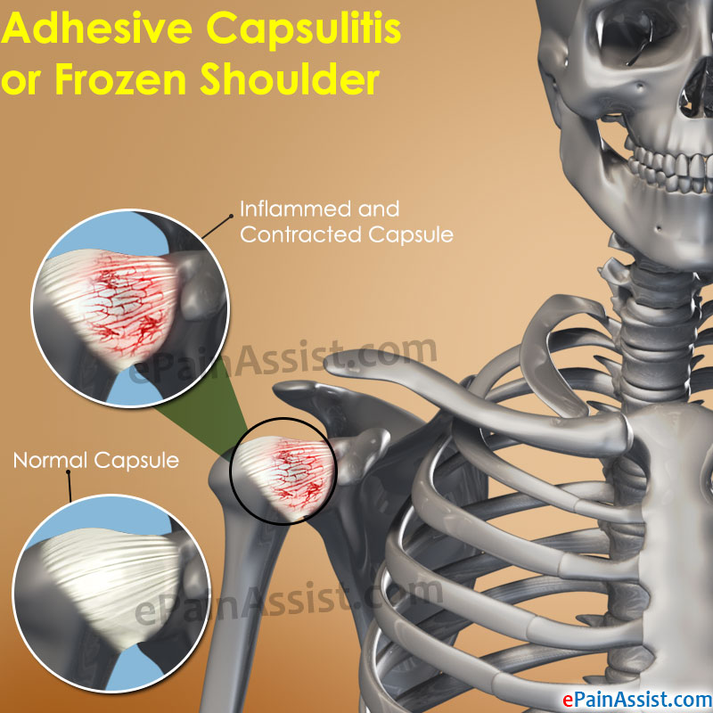 Adhesive Capsulitis or Frozen Shoulder