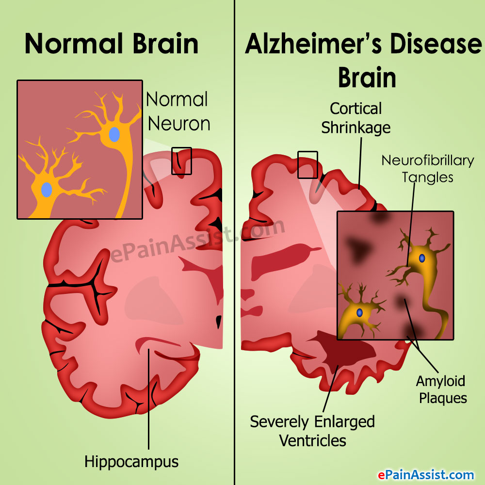 Signs & Symptoms of Alzheimer's Disease