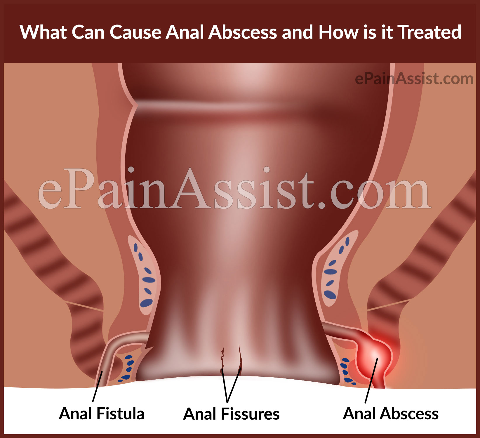 Anal abscess picture pics