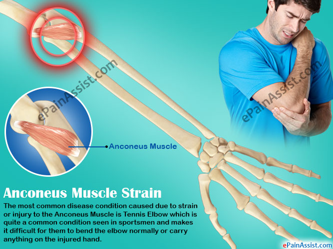 What is Anconeus Muscle and What is its Function?