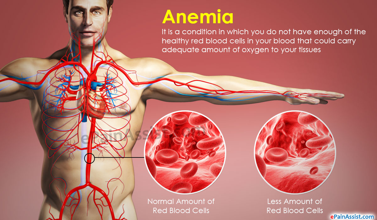 the most common blood disorder anemia essay Blood disorders affect one or more parts of the blood and prevent your blood from doing its job which affect how your blood clots anemia.