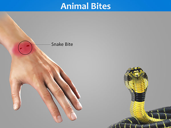Causes of Burning Pain Or Burning Sensation due to Animal Bites