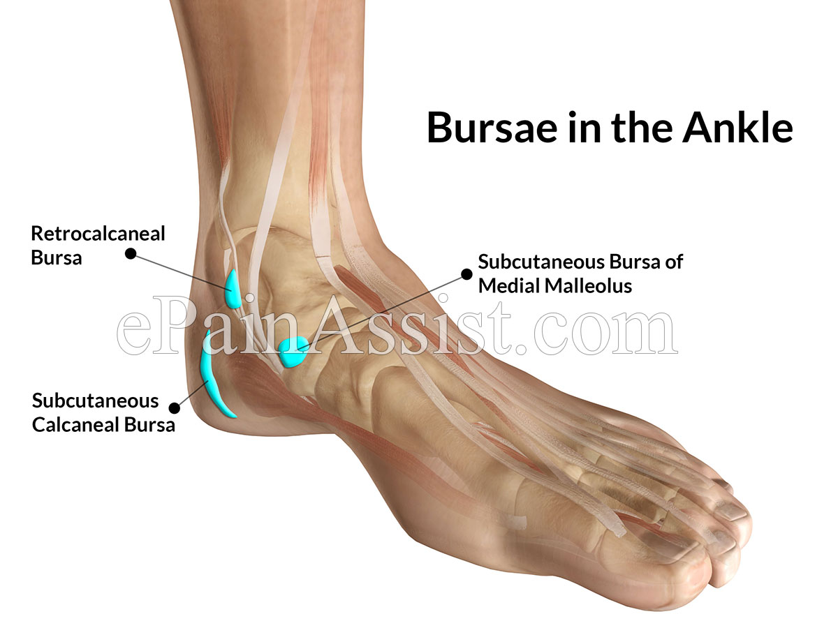 ankle joint bursitis|causes|symptoms|treatment-conservative, pt, Human Body