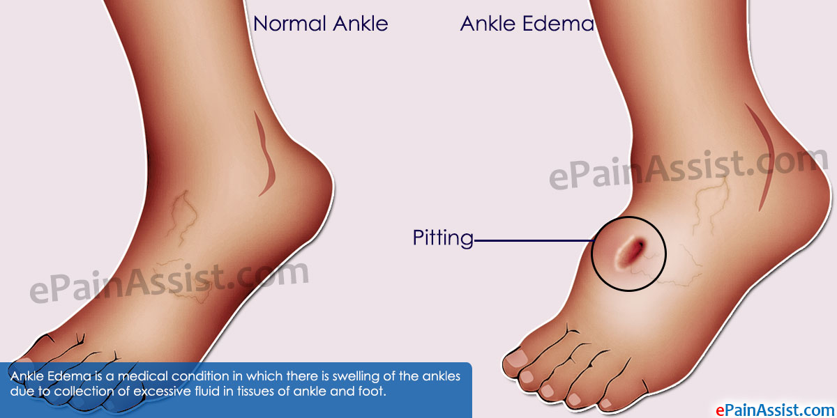 How To Get Rid Of Swollen Ankles Naturally
