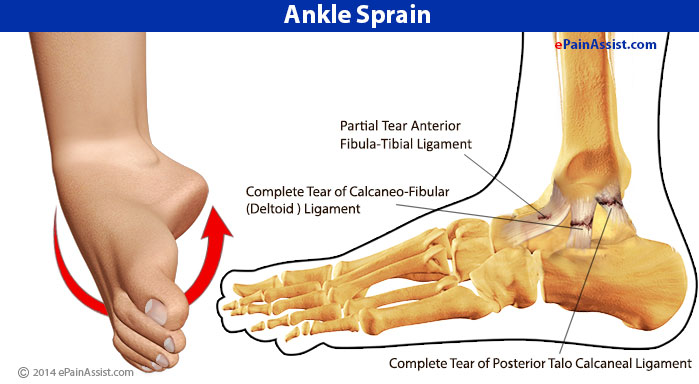 sprained ankles The ankle joint, which connects the foot with the lower leg, is injured often an unnatural twisting motion can happen when the foot is planted awkwardly, when the ground is uneven, or when an unusual amount of force is applied to the joint.