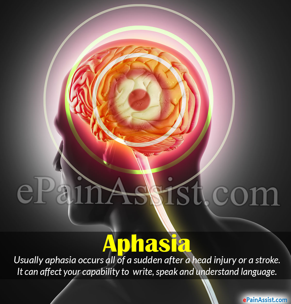 aphasia|causes|symptoms|types|treatment|recovery|prognosis|coping tips, Skeleton
