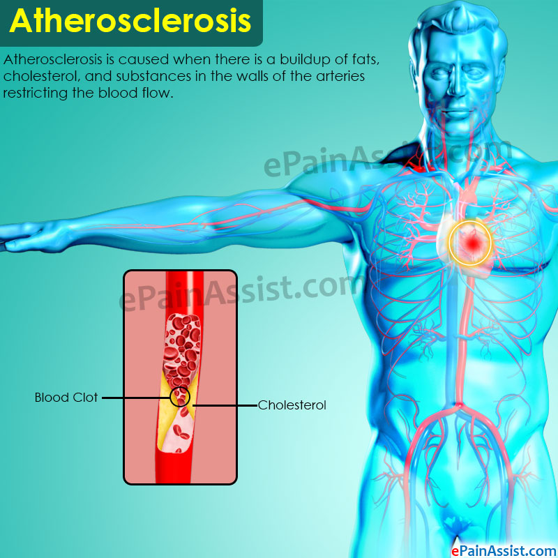 What Is Atherosclerotic Disease?