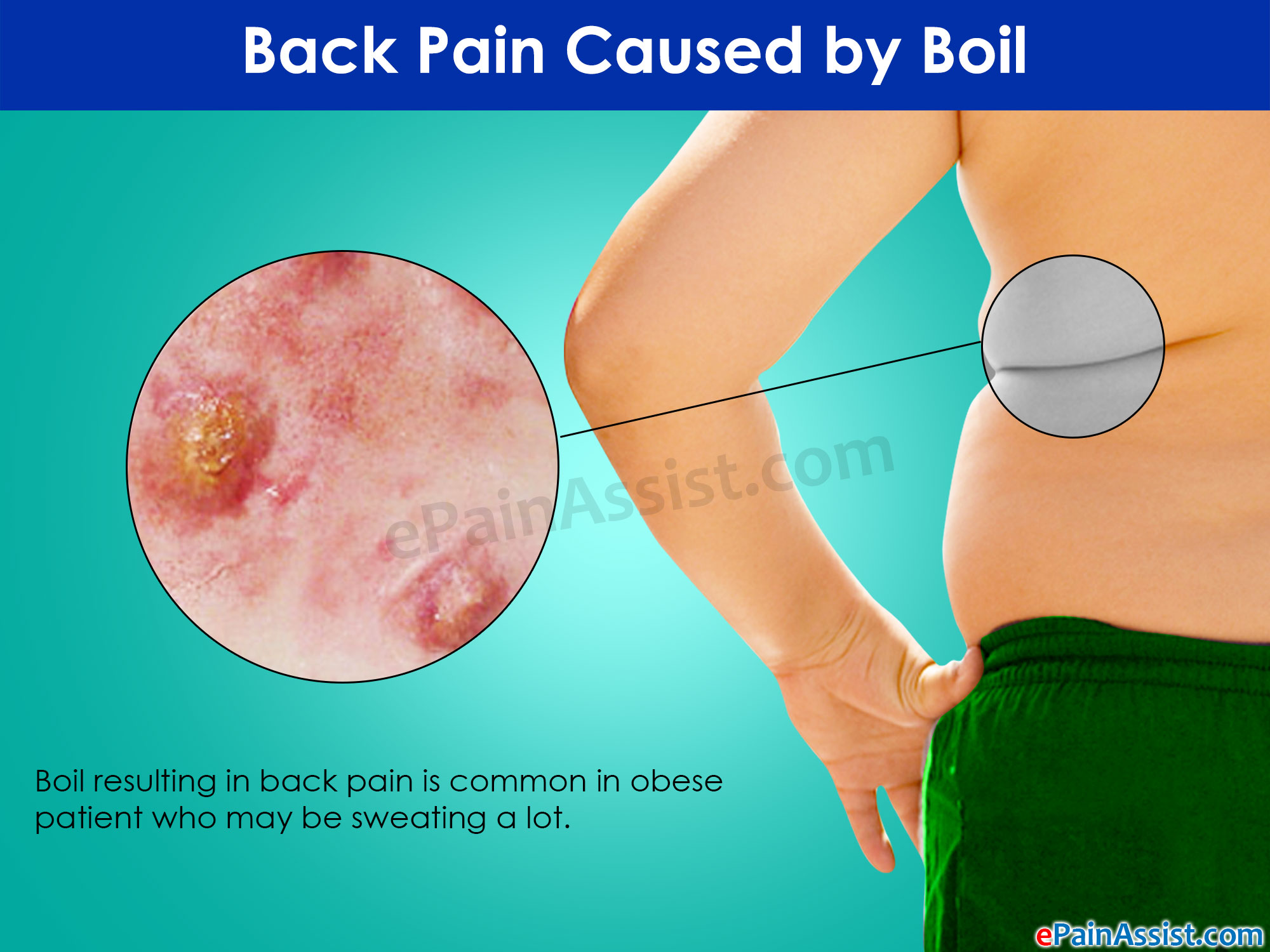 Back Pain Caused by Boil