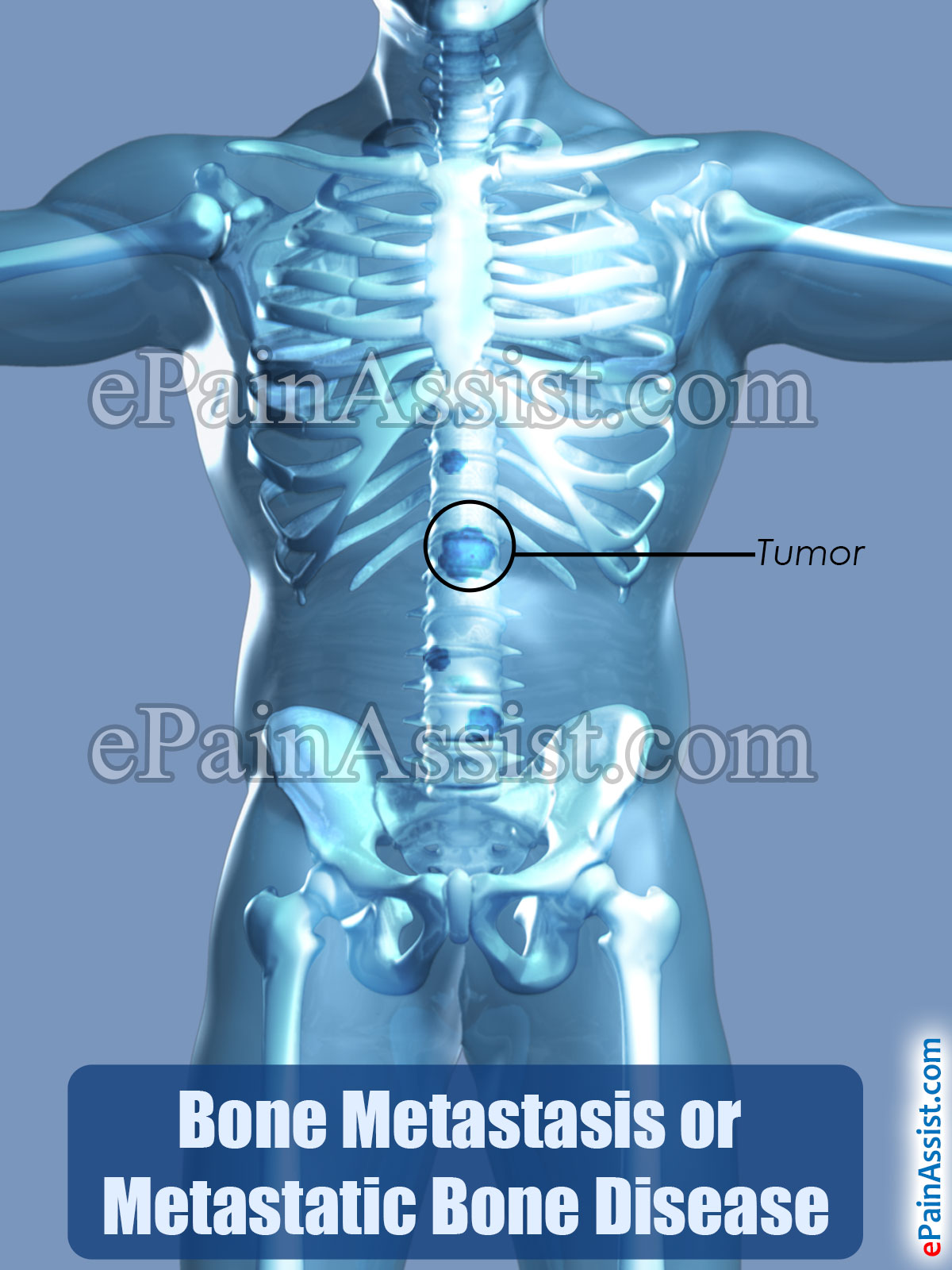 Bone Metastasis or Metastatic Bone Disease