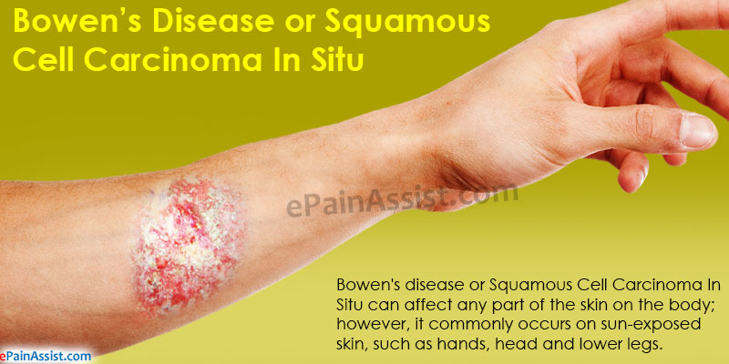 Bowen's Disease or Squamous Cell Carcinoma In Situ