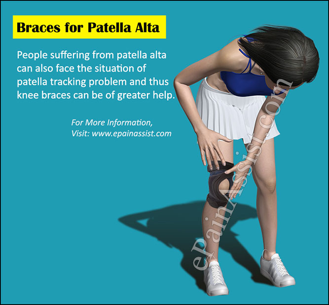 Braces for Patella Alta