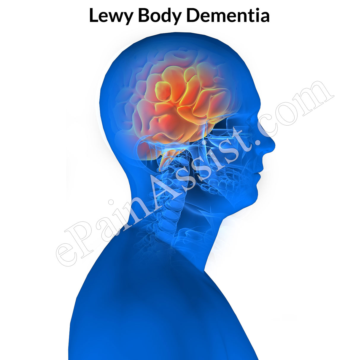 lewy body dementia Lewy body dementia: diagnosis, management and future directions bradley f boeve, md divisions of behavioral neurology and movement disorders.