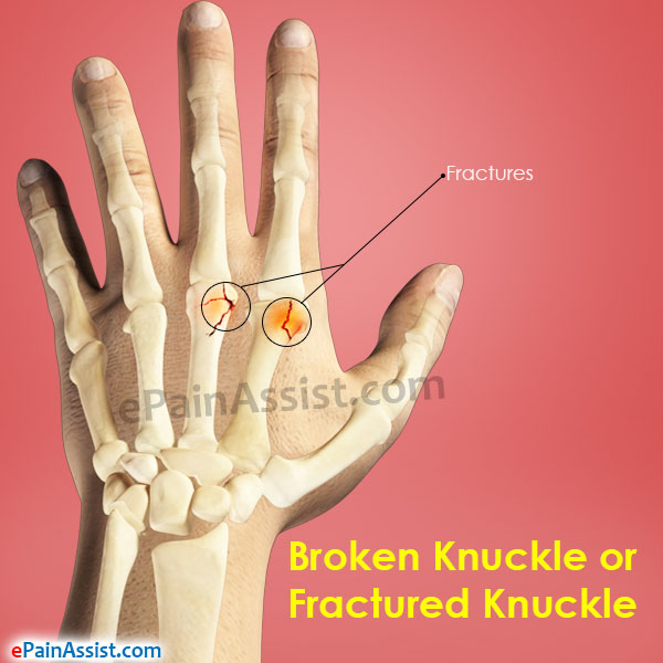 Broken Knuckle or Fractured Knuckle: Causes, Symptoms, Treatment, Prevention