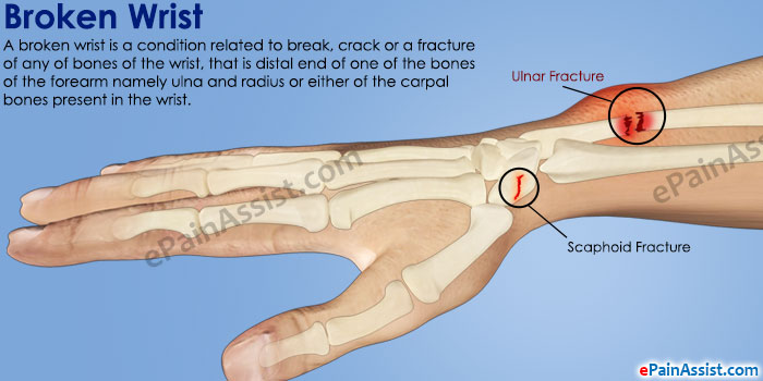 Did i fracture a bone in my hand?