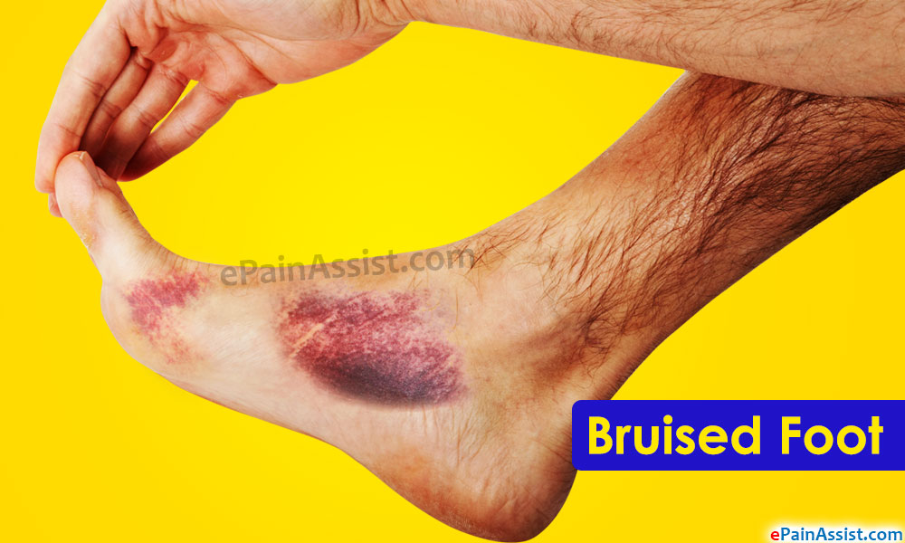bruised foot causes symptoms treatment healing time rh epainassist com Hematoma On a Line Hematoma On a Line