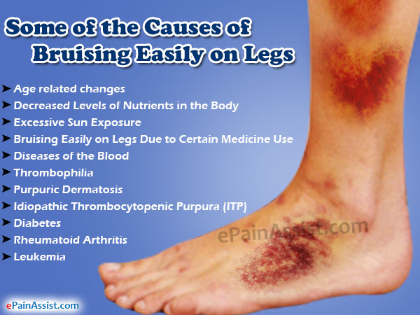 Some of the Causes of Bruising Easily on Legs