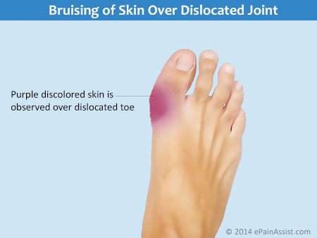 Bruising of Skin Over Dislocated Joint