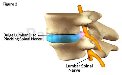lumbar disc bulge|causes|symptoms|treatment- manual, physical, Cephalic Vein