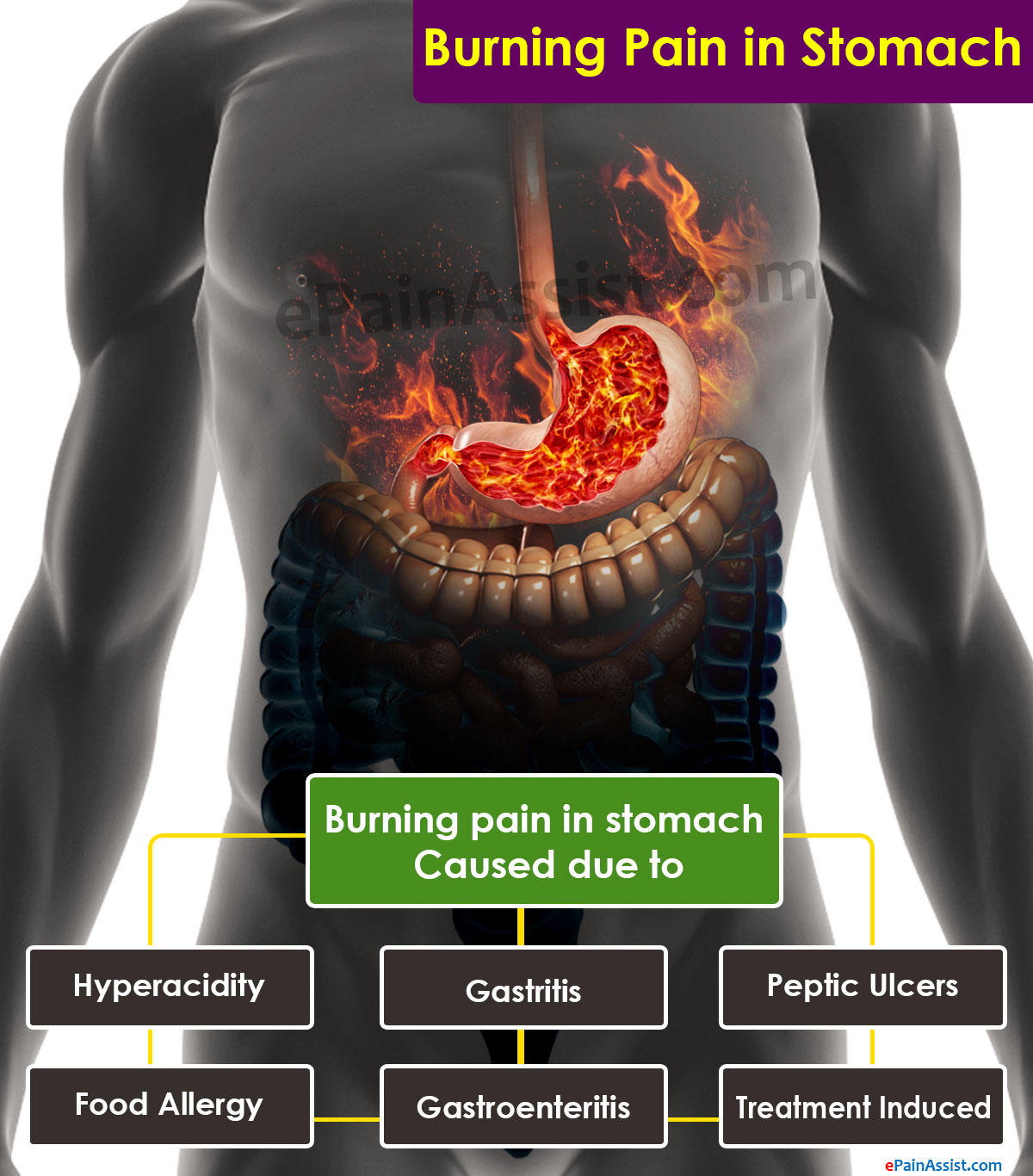 What Can Cause Burning Pain in Stomach?