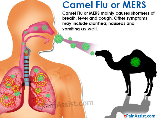 Camel Flu or MERS