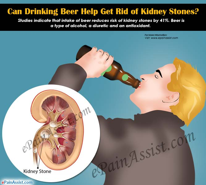 Can Drinking Beer Help Get Rid Of Kidney Stoneswhat Other Food And