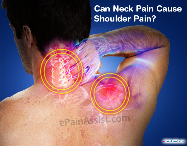 Can Neck Pain Cause Shoulder Pain