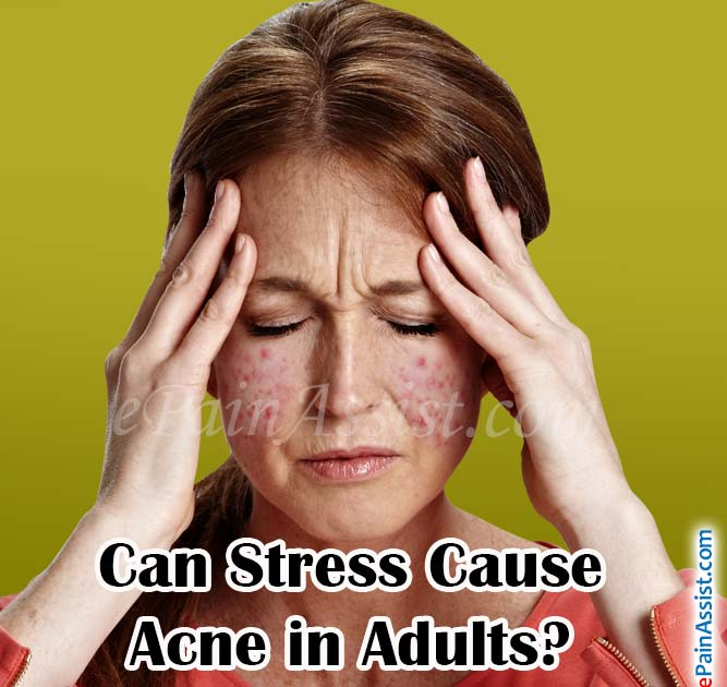 Can Stress Cause Acne in Adults?