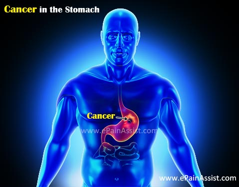 Cancer in the Stomach