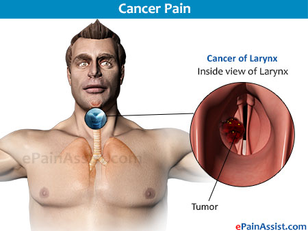 Chronic Pain of Chest Due to Cancer