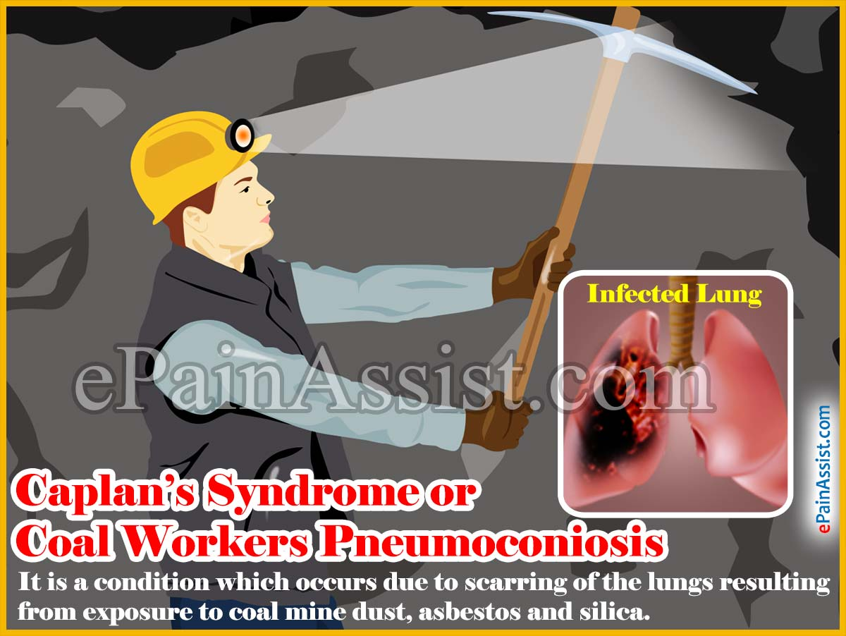 Caplan's Syndrome or Coal Workers Pneumoconiosis