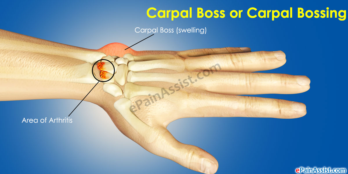 Carpal Boss or Carpal Bossing