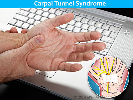 Peripheral Nerve Compression Causes by Carpal Tunnel Syndrome