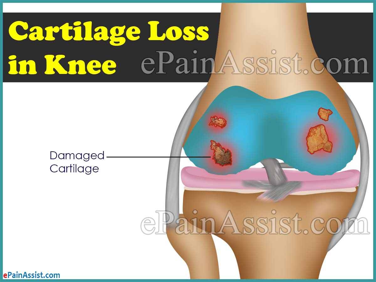 Cartilage Loss in Knee or No Cartilage in Knee