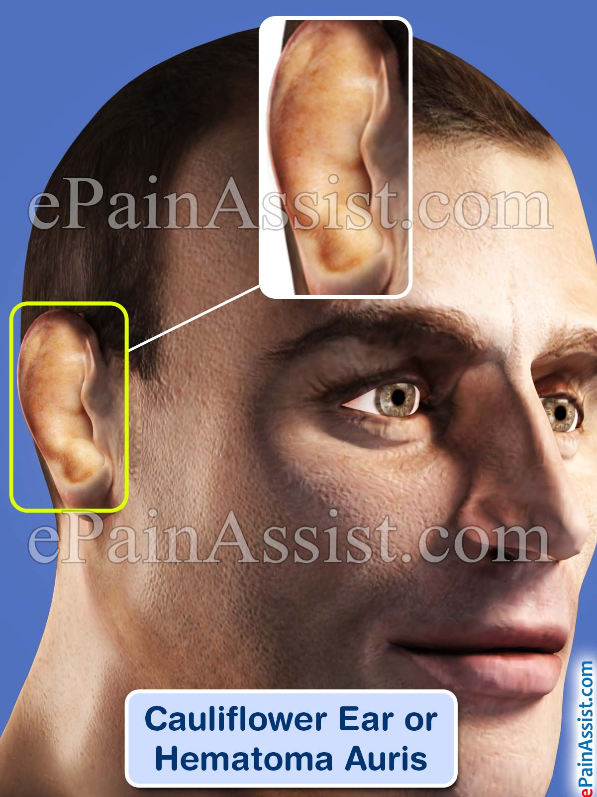 Cauliflower Ear or Hematoma Auris