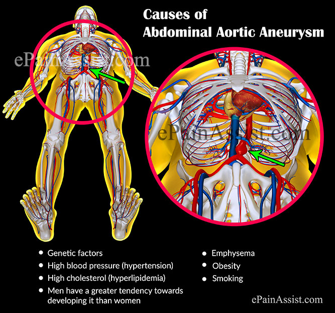 abdominal aortic aneurysm: treatment, causes, symptoms, signs, tests, Human Body
