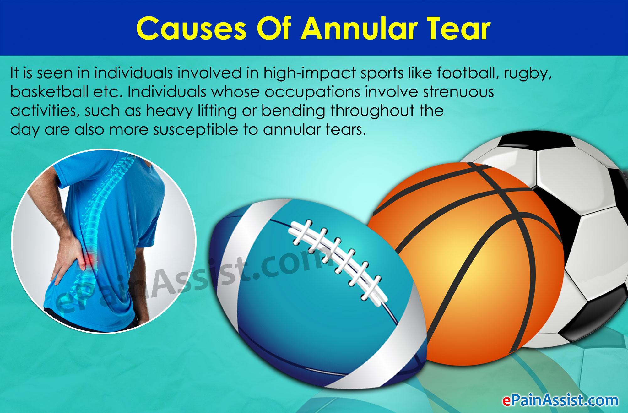 Annular Tear: Treatment, Healing Time, Exercises, Symptoms