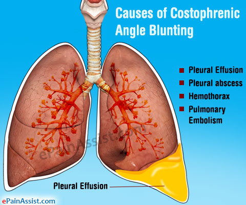 costophrenic angle blunting treatment causes symptoms