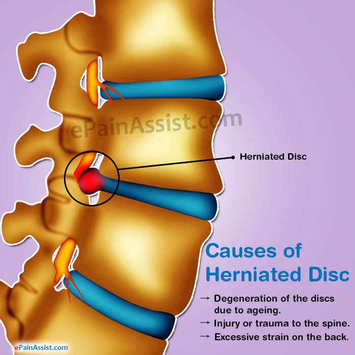 Causes of Herniated Disc