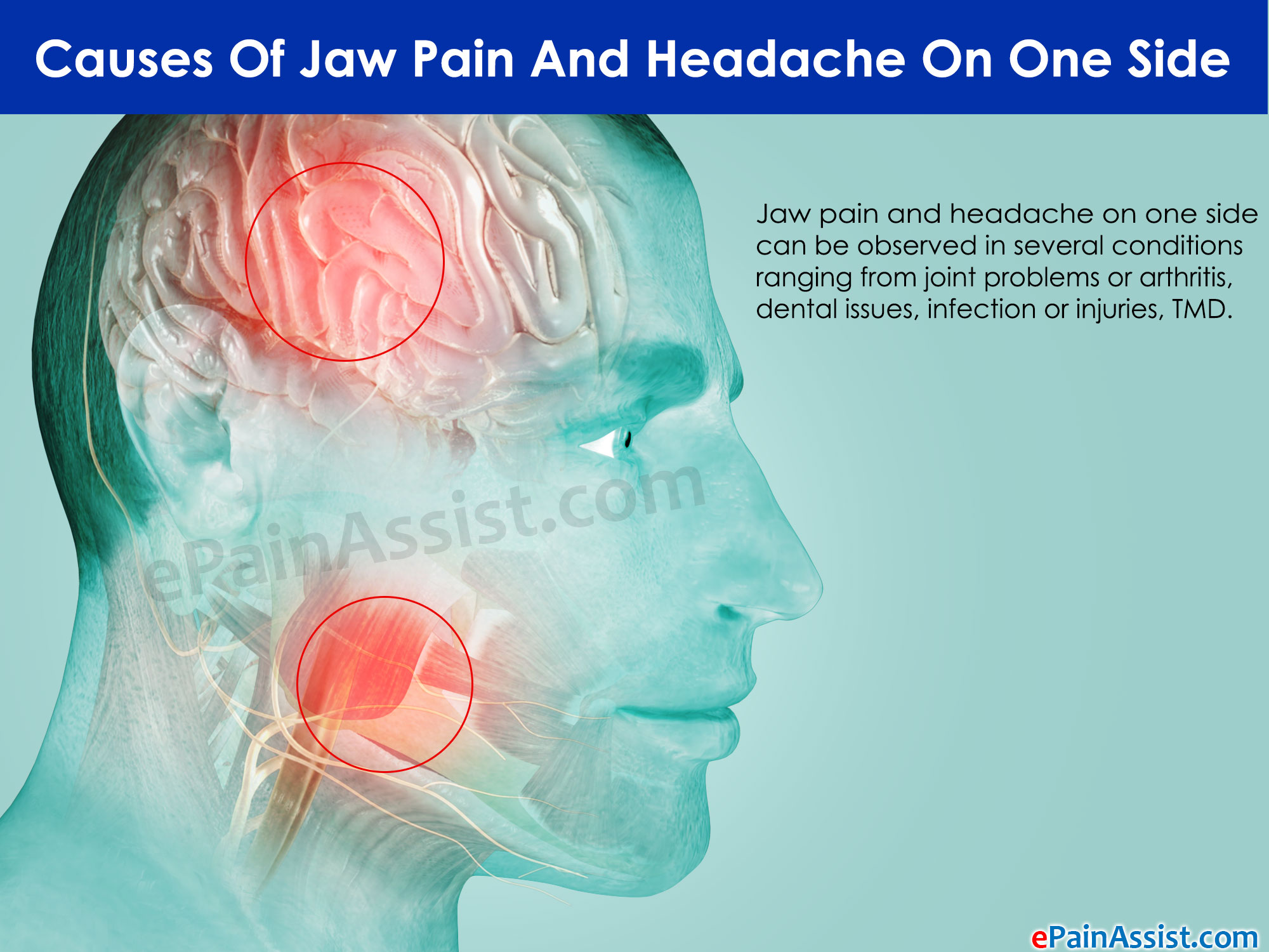 Causes Of Jaw Pain And Headache On One Side