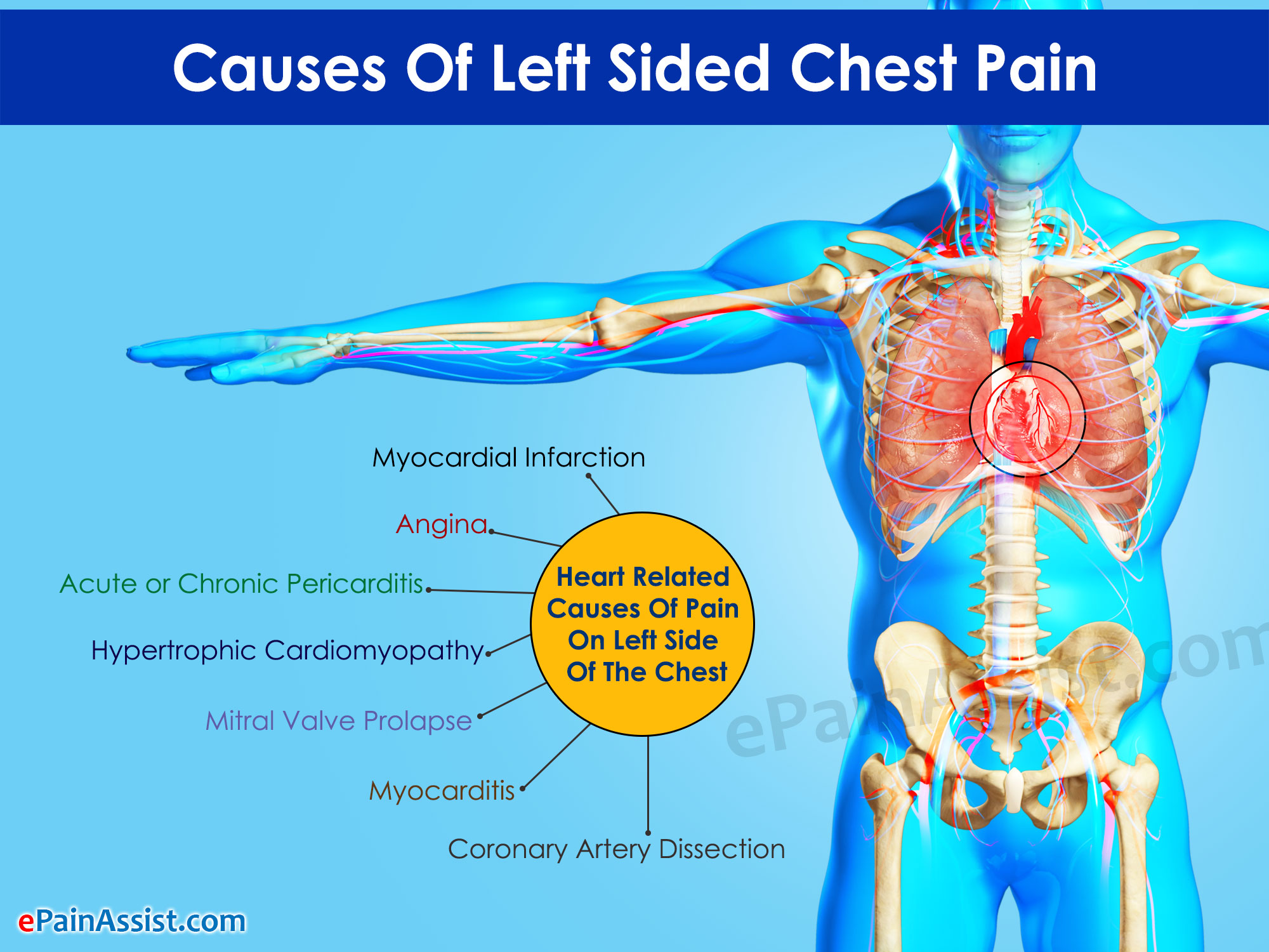 Causes Of Left Sided Chest Pain