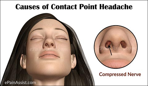 Causes of Contact Point Headache
