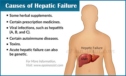 Causes of Hepatic Failure