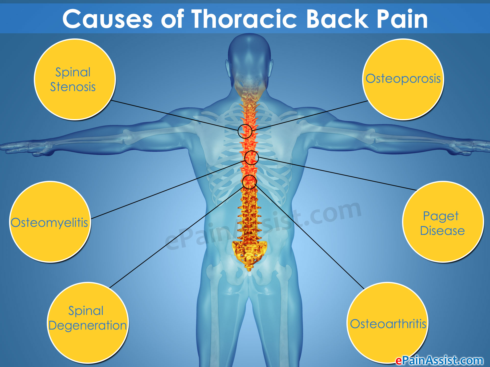Causes of Thoracic Back Pain