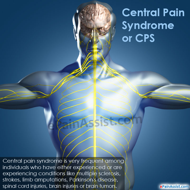 Central Pain Syndrome or CPS