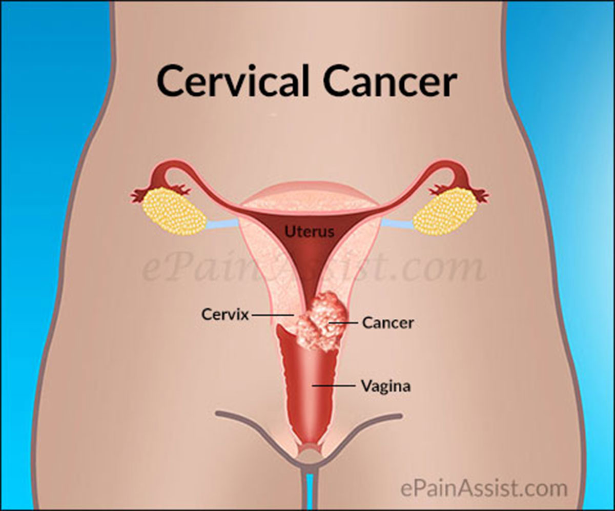 Cervical Cancer Curable