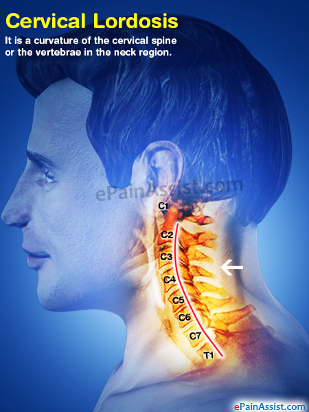 Cervical Lordosis Causes Symptoms Treatment Exercise