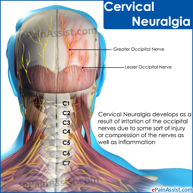 Cervical Neuralgiacausessymptomstreatmentdiagnosis