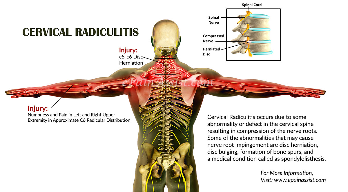 Cervical Radiculitiscausessymptomstreatmentdiagnosis